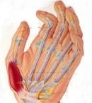 Penyakit Tulang Layuh sendi