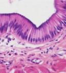 Gambar struktur Jaringan epitel