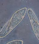 Gambar Siklus Hidup Paramecium