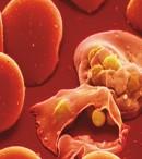 Macam-Macam plasmodium