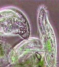contoh protozoa