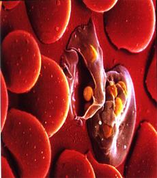 pengertian plasmodium
